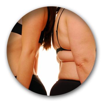 que_es_obesidad_2